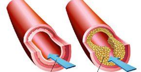 Mỡ mau gây nguy hiểm đến sức khỏe của người bệnh